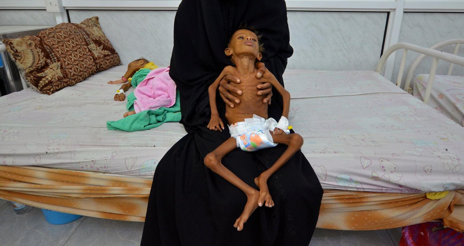 ENSZ: 18,4 millió embert fenyeget az éhhalál Jemenben az év végéig